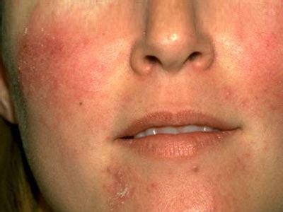 Medical Pictures Info – Cellulitis Face