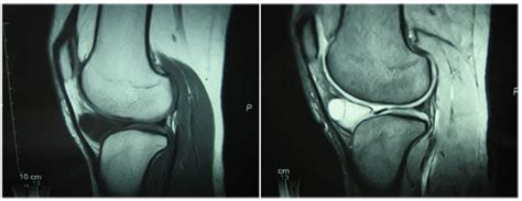A Case of Infrapatellar Fat Pad Ganglion of the Knee