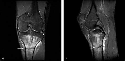 Stress Fractures: Diagnosis, Treatment, and Prevention