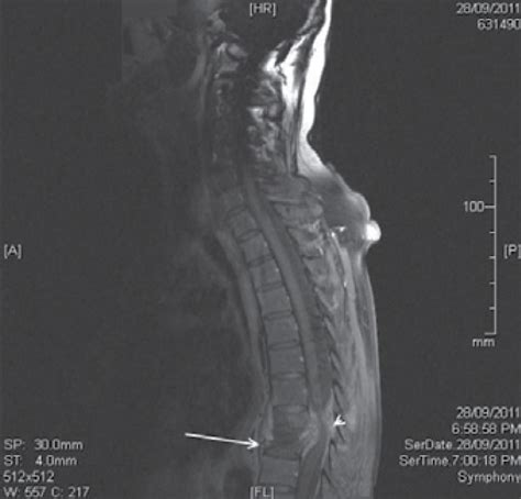 RACGP - Back pain with lower limb paresis - A case study