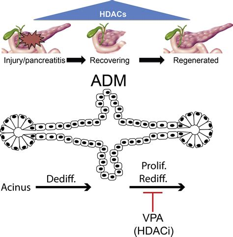 Valproic Acid Limits Pancreatic Recovery after