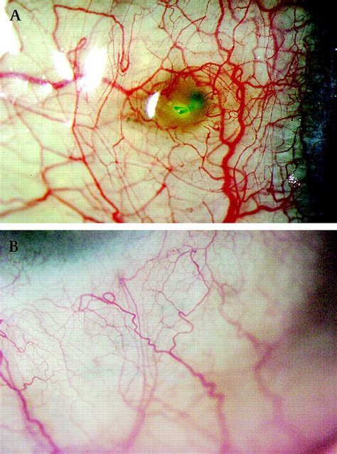 Z-suture: a new knotless technique for transscleral suture