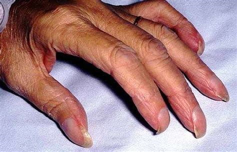 Nail Disorders and Abnormalities